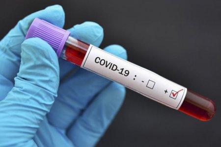Azərbaycanın bu bölgəsində virusa yoluxanların sayı 125-ə ÇATDI